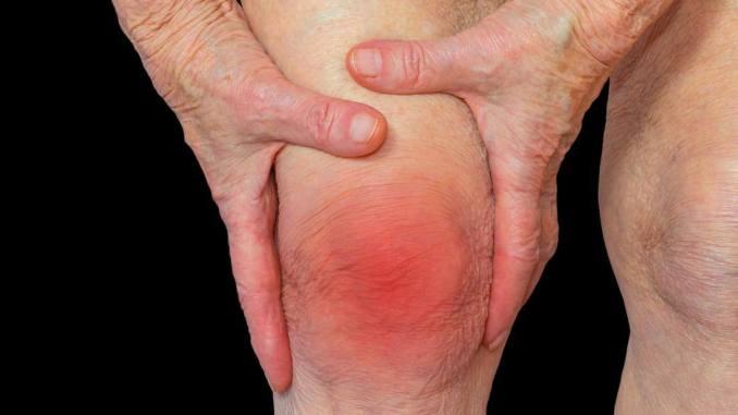 نصائح لمواجهة الإرهاق الناجم عن التهاب المفاصل الرثواني