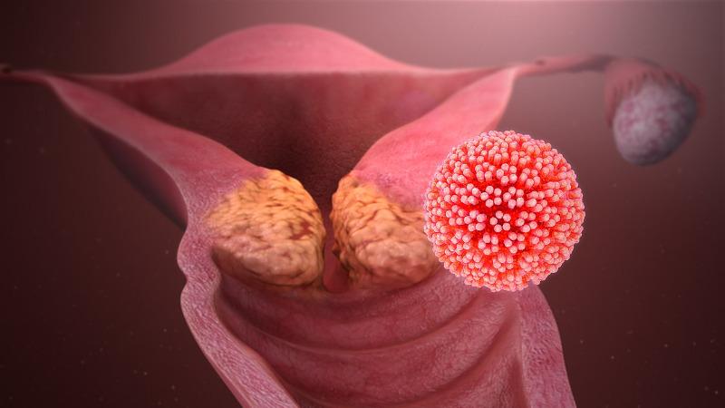 ما هو الـ HPV أ و مايعرف بـ فيروس الأورام الحليمية ؟