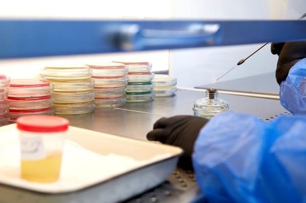 medical-technologist-doing-urine-test-medical-laboratory-wearing-protective-uniform_130111-4161