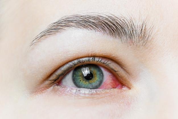 close-up-severe-bloodshot-red-eye-viral-blepharitis-conjunctivitis-adenoviruses-irritated-infected-eye_69064-1559